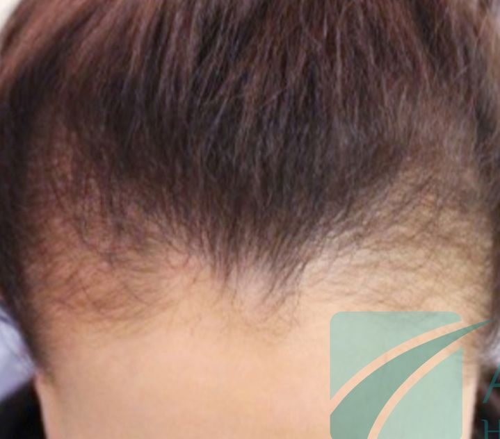Cicatricial alopecia and how to cure it?
