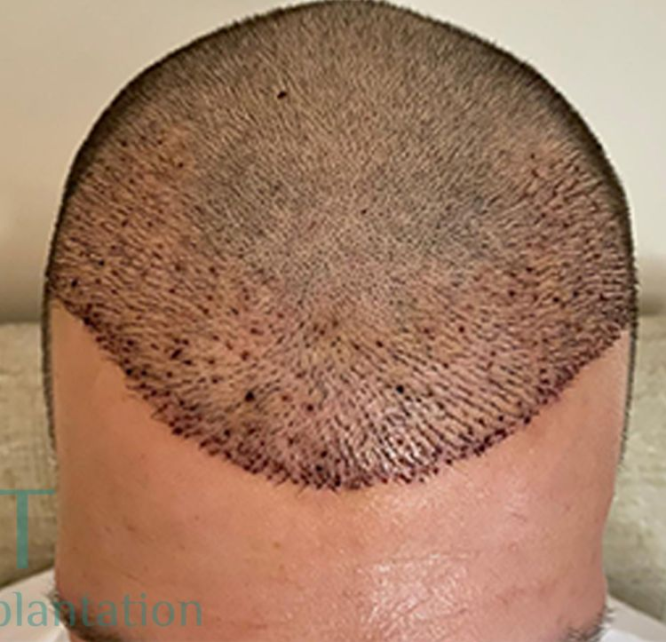 Traction baldness or traction alopecia
